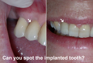 Can you spot the implanted tooth?